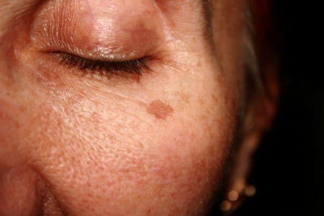 Elimina-las-manchas-de-tu-rostro-con-leche-bicarbonato-limón-y-harina-3