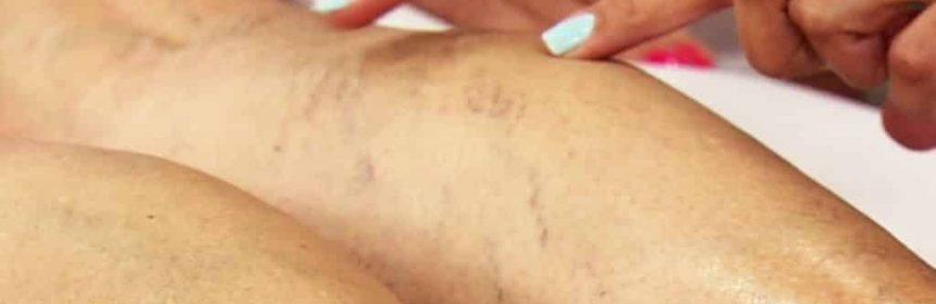 tratamientos-naturales-para-eliminar-varices-en-las-piernas