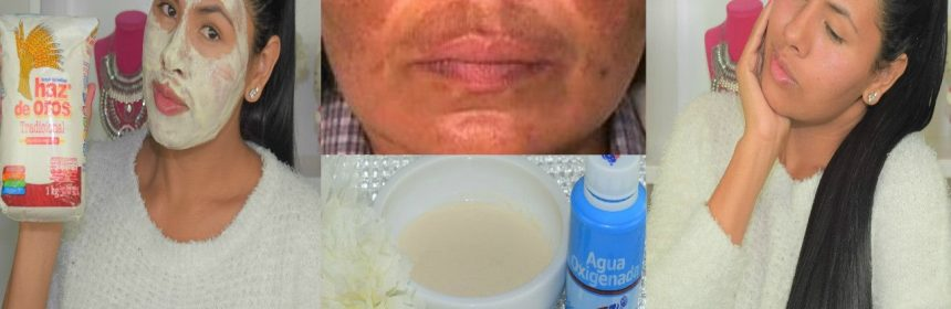 harina, leche, bicarbonato y limón para blanquear el rostro