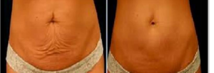 Arcilla-café-y-alcanfor-para-eliminar-la-flacidez-del-abdomen