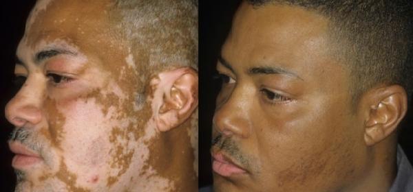 cura-para-el-vitiligo