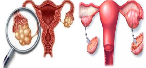 remedio-definitivo-para-limpiar-ovarios