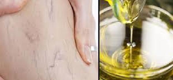 aceite de oliva para las varices
